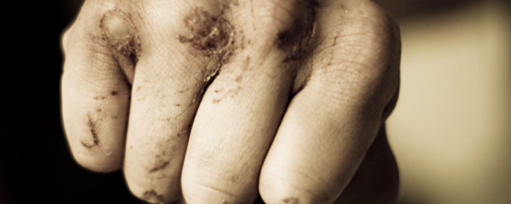 Досмерти идокомы: подростки избили стариков