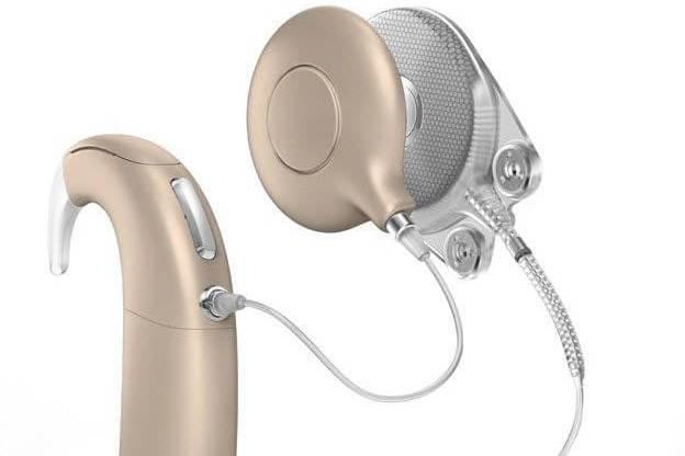 Приборы для исправления нарушений слуха начнут производить в Дубне   Изображение 1
